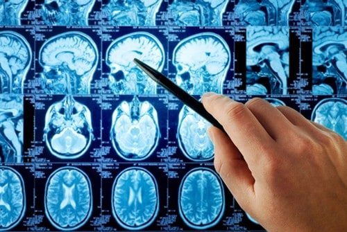 Increased interoperability could lead to better understanding of Alzheimer's disease